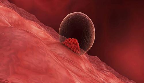 implantation of the fetus in the uterus
